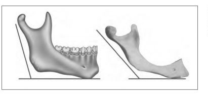 Mandible-Angle